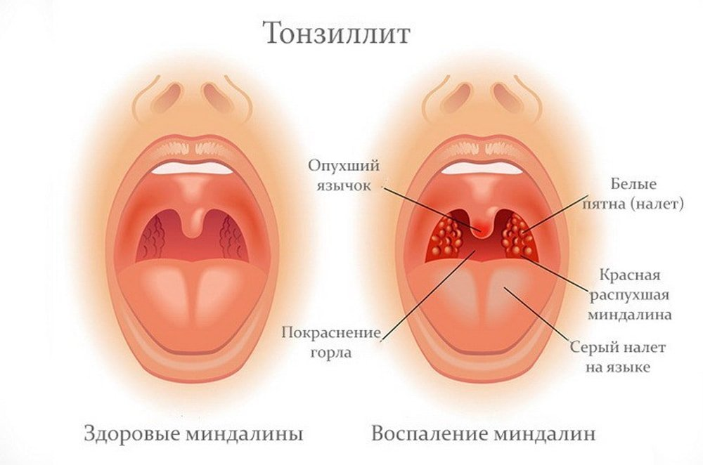 белые точки в горле, тонзилит