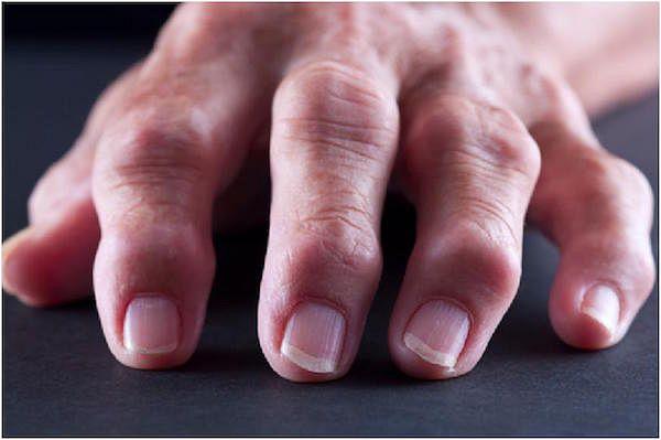 Ревматоидный артрит лечение отзывы кто вылечился