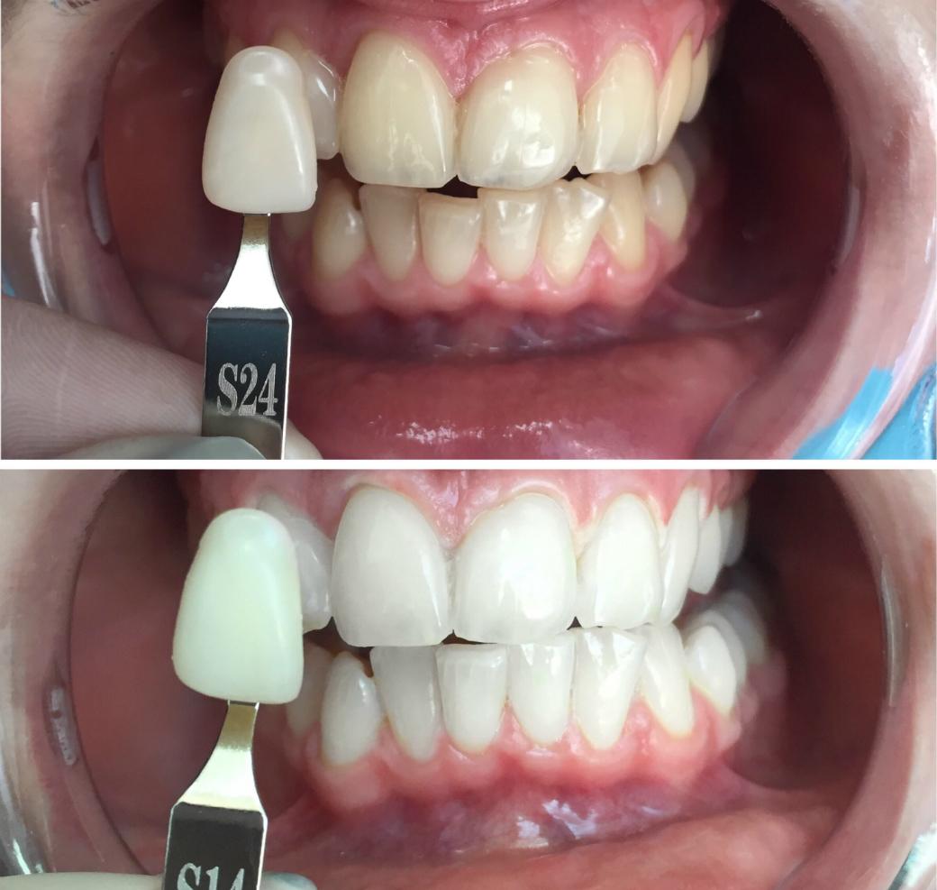 записаться на отбеливание зубов