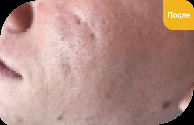 плазма в косметологии