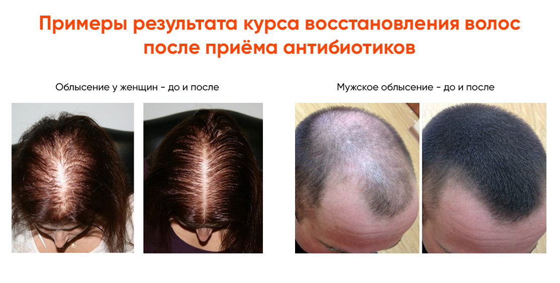Восстановление волос после ковида