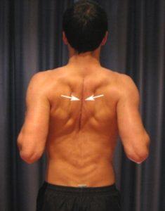 Пример упражнения сведение-разведения лопаток