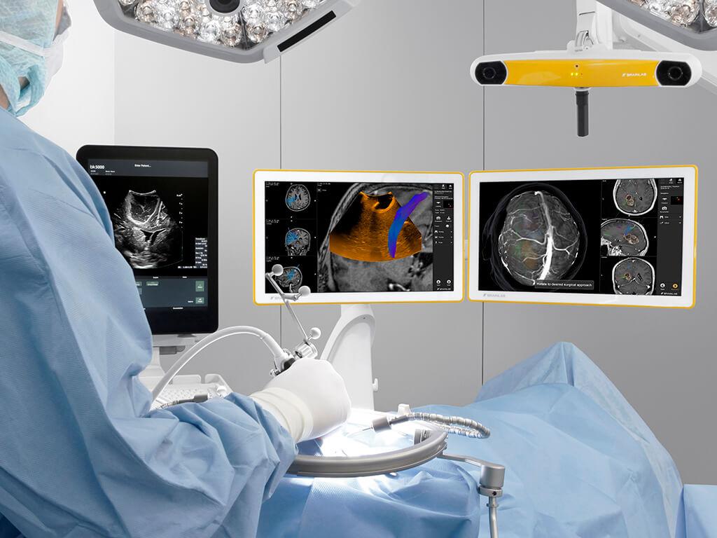 нейронавігація в лікуванні пухлин головного мозку