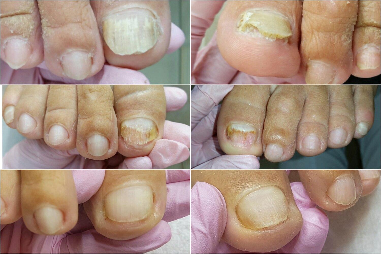 Лечение дрожжевого грибка ногтей народными средствами