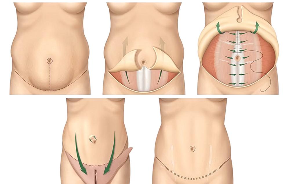 Операция при диастазе
