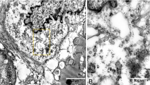 Рисунок 8 [10]. Электронная микроскопия. Цитопатическое действие вируса, интерстициальное клеточное воспаление (А) с вирусными частицами (некоторые из них увеличены на сегменте В, что соответствует желтому сектору на сегменте А). Интерстициальные клетки в близком контакте с кардиомиоцитом (слева). Вирусные частицы имеют различный диаметр от 70 до 120 нм. Хотя воспаленная клетка интерстиция и кардиомиоцит вплотную прилегают, вирусных частиц в кардиомиоците не обнаружено.