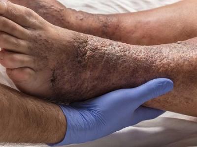 тромбофлебит, трофическая язва, венозная экзема, кровотечение из варикозных вен, белая атрофия кожи, гиперпигментация, осложнения варикозной болезни