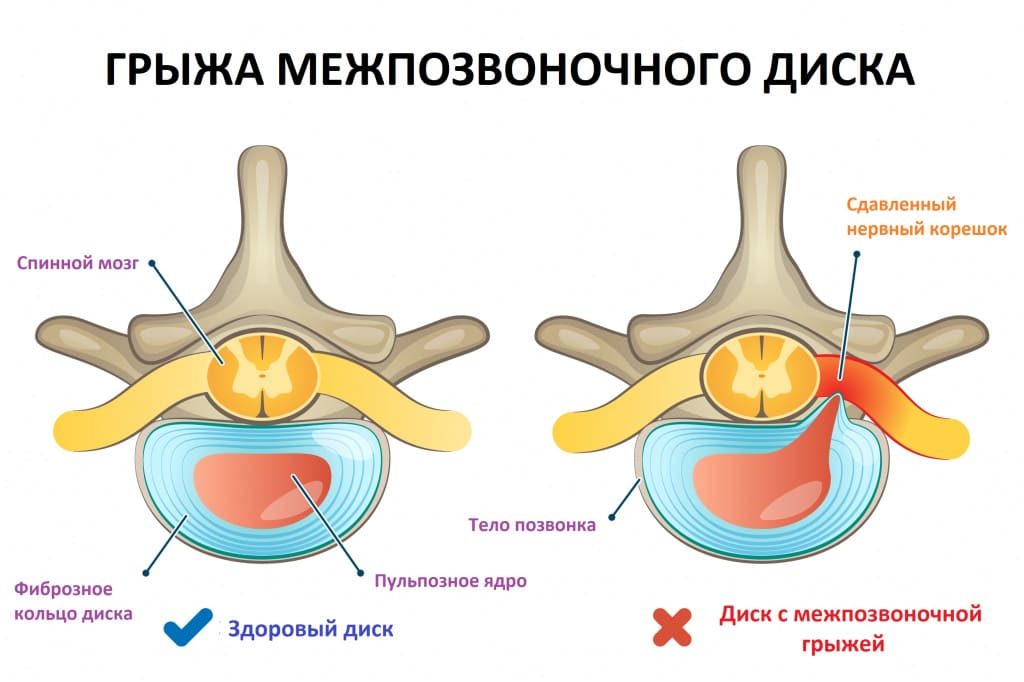 Карипазим от грыжи позвоночника