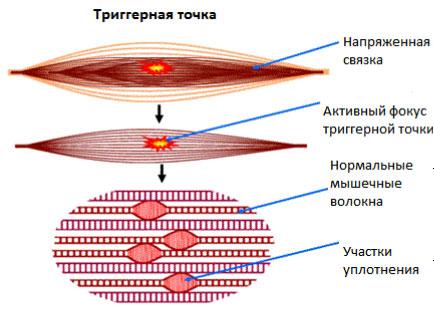 Триггерные точки при миофасциальном синдроме