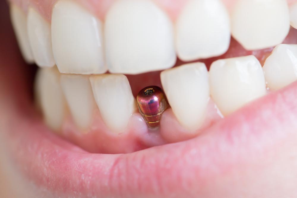 Удаление передних зубов на нижней челюсти