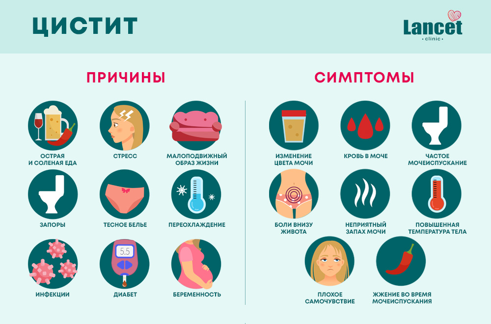 Цистит: причины и симптомы
