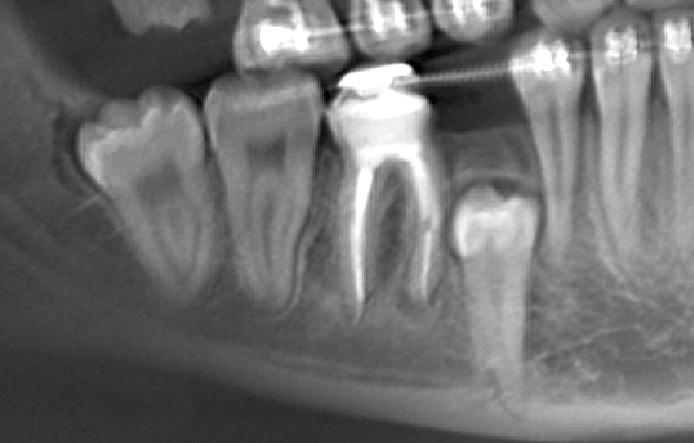 Панорамный реформат фрагмента КЛКТ столщиной среза 10 мм (аналог ОПТГ), на котором видна задержка прорезывания 4.5 зуба