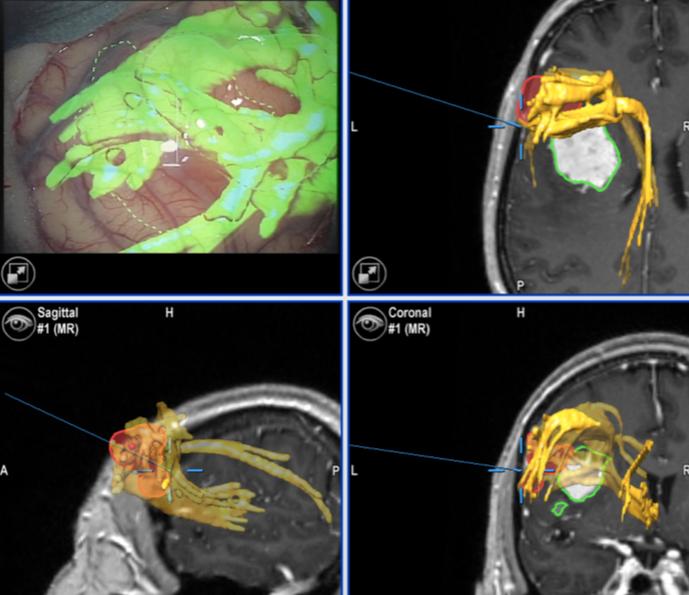 Трактографія при пухлинах головного мозку