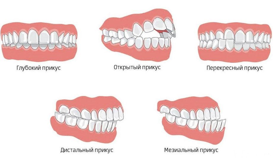 Для чего нужен панорамный снимок зубов?
