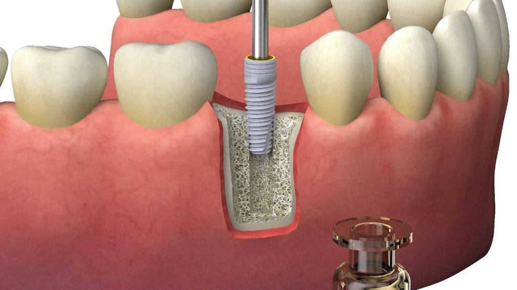 зубной имплант краснодар