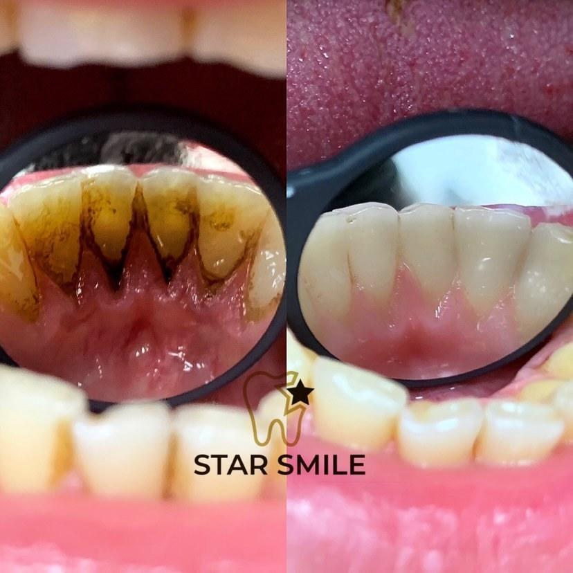 chitka-zubov-star-smile