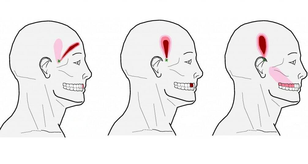 может ли болеть голова от зуба