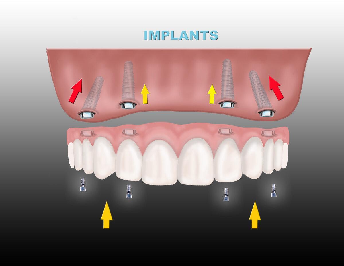 имплантация зубов краснодар