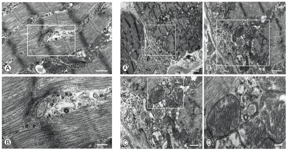 Рисунок 3. Данные электронной микроскопии.  Слева: А – саркомеры с электронно-плотной Z-полоской. Сохранена архитектура саркомера. В центре определяется вирусная частица коронавируса (масштабная метка 500 нм, х30000); B – увеличение выделенной области на рисунке А, большее увеличение вирусной частицы (масштабная метка 200 нм, х68000) Справа: A – миоциты в пограничной области, прилегающей к эндотелиальным клеткам капилляров, в нижней центральной части изображения, выделена граница сарколеммы миоцита и эндотелиальной клетки (масштабная метка 2000 нм, х6800); B – саркомеры обильно заполнены электронно плотными частицами гликогена; отчетливо визуализируется базальная мембрана капилляров, окаймляющая сарколемму; обнаруживается несколько пиноцитозных пузырьков внутри сарколеммы; некоторые вирусные частицы расположены в непосредственной близости к эндоплазматическому ретикулуму рядом с митохондриями в белой рамке; С – вирусные частицы в нижней средней трети изображения располагаются между эндоплазматическим ретикулумом и митохондрией; D – вирусная частица отпочковывается от мембраны, содержащей легкий электронно-плотный матрикс, соответствующий Т-трубочкам.