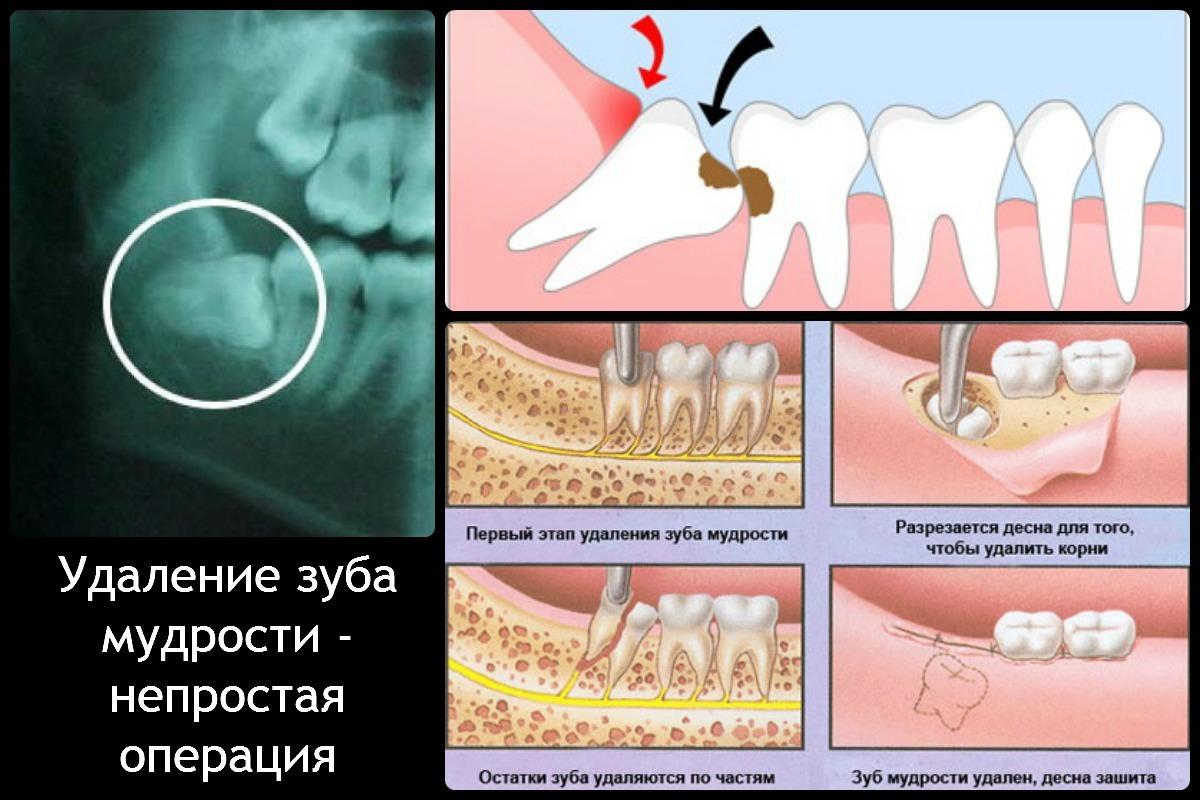 Удаление зуба мудрости: возможные осложнения после процедуры