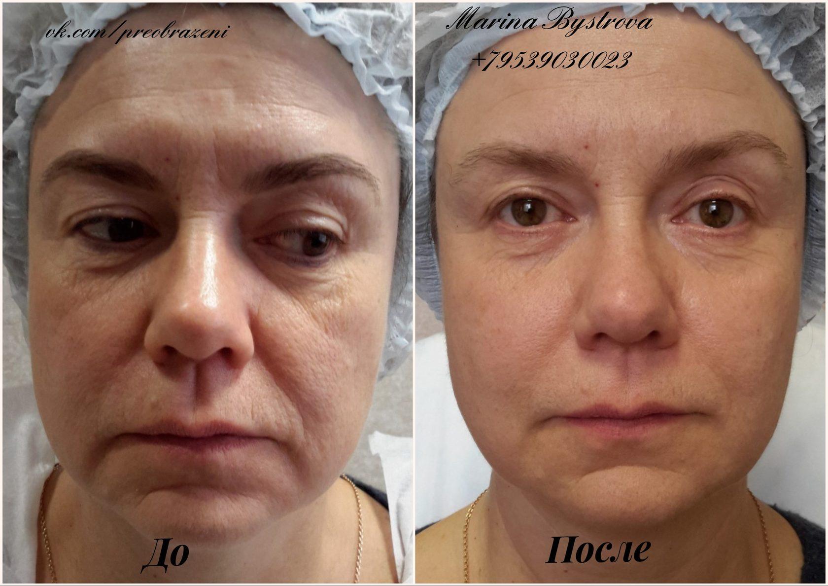 карбокситерапия лица фото до и после бесплатные