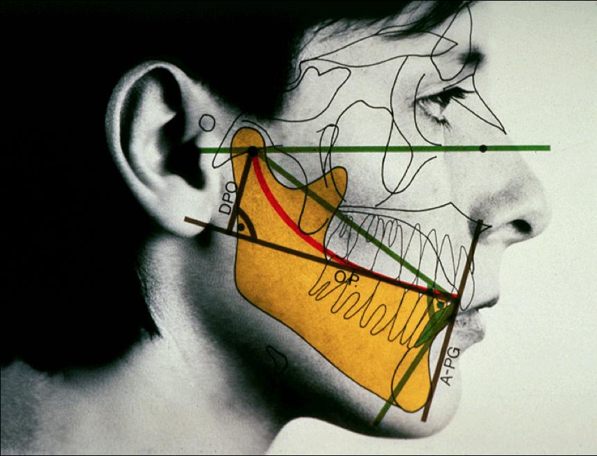 Боль в суставе челюсти ВНЧС