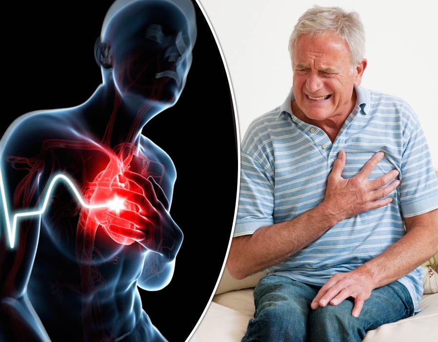 Инвалидность после инфаркта: правила назначения в 2021 году