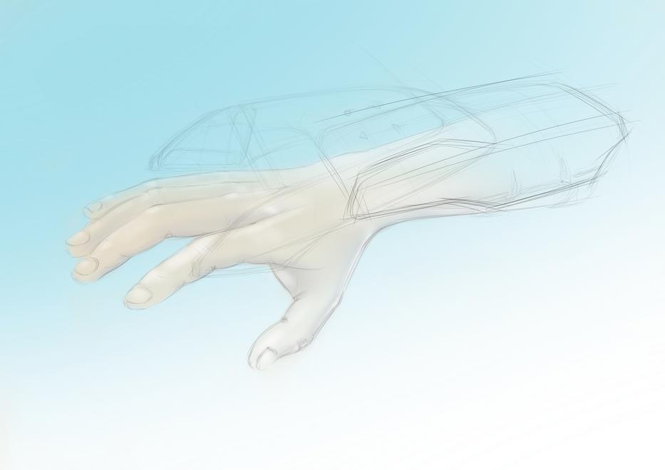 Аппарат для реабилитациии суставов руки после инсульта. Разработка нужна срочно