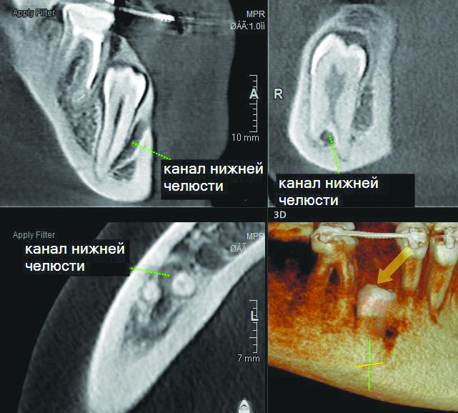 Визуализация ретенированного 4.5 зуба. Зуб располагается втолще костной ткани, толщина костной ткани над окклюзионной поверхностью коронки зуба—около 4,2 мм. На срезах отчетливо визуализируется наличие двух корней, разделение которых происходит сапикальным сдвигом. Между корнями зуба располагается канал нижней челюсти