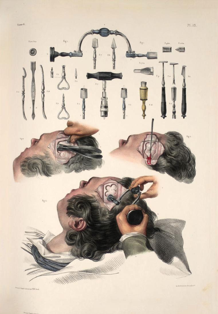 Хирургические инструменты изпособия по анатомии и оперативной хирургии — атласа Жана Батиста Марка Буржери (1844)