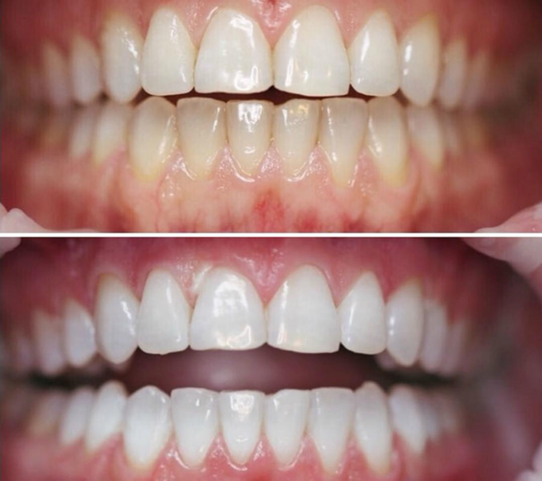 отбеливание зубов в дрожжино до после
